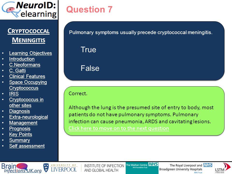 True False Question 7 Cryptococcal Meningitis True False