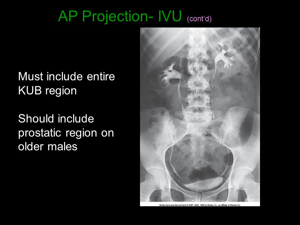 AP Projection- IVU (cont'd)