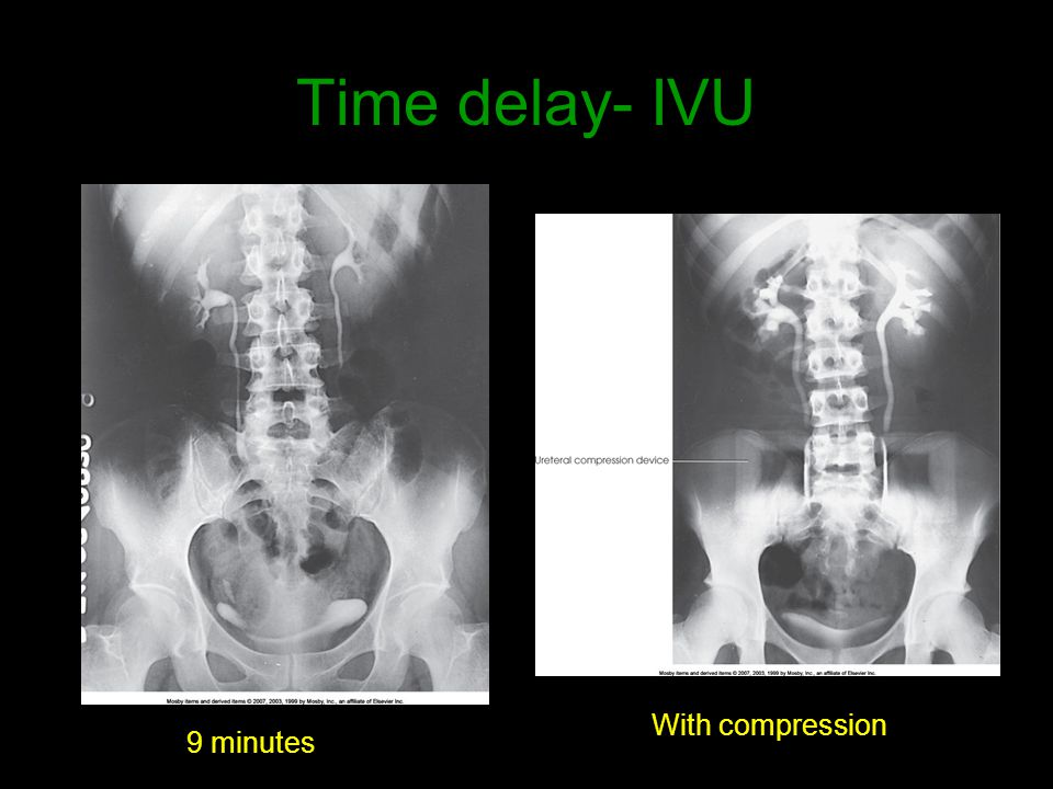 Time delay- IVU With compression 9 minutes