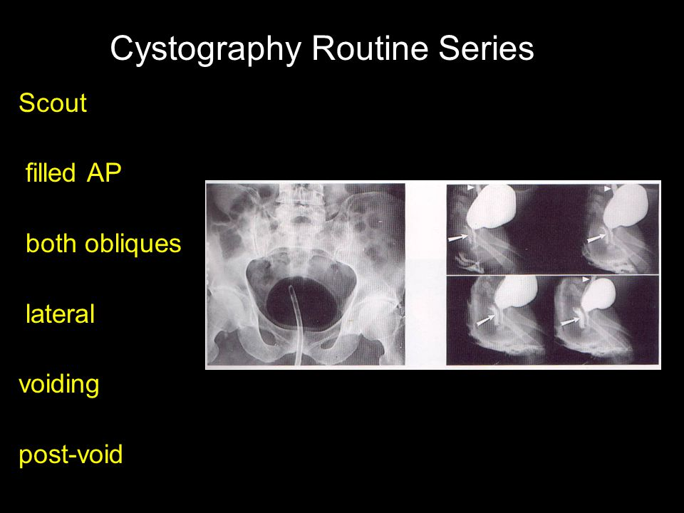 Cystography Routine Series