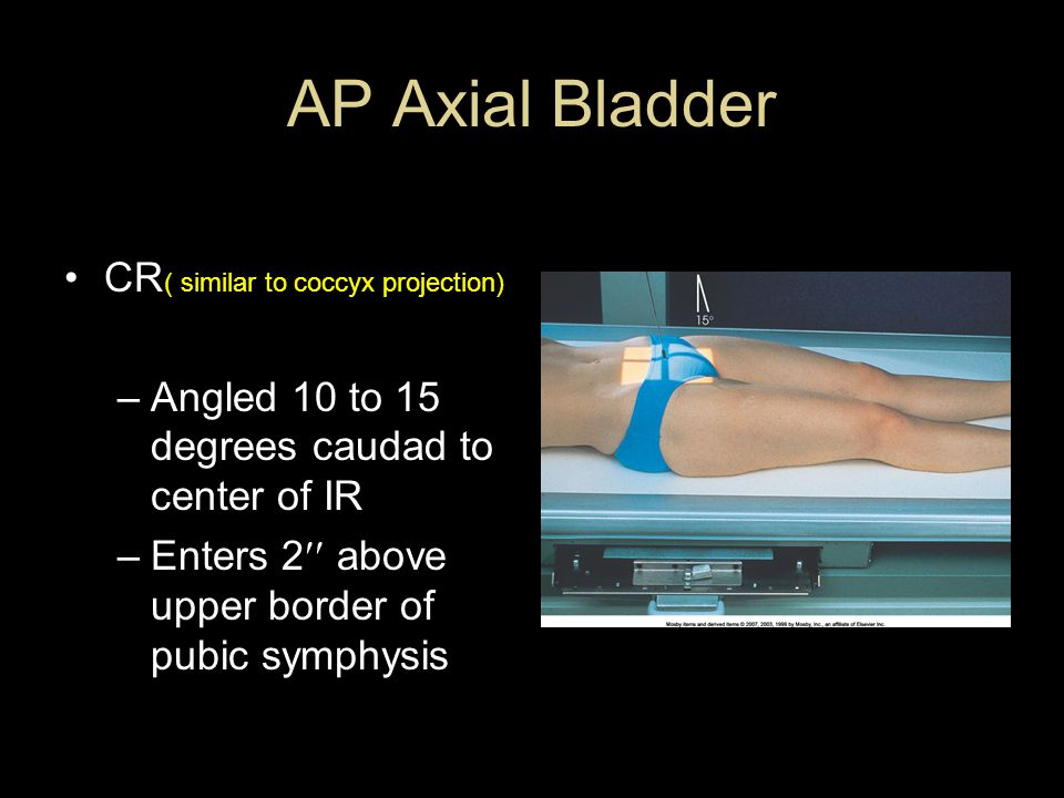 AP Axial Bladder CR( similar to coccyx projection)