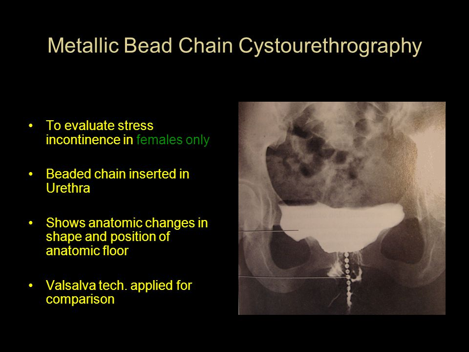 Metallic Bead Chain Cystourethrography