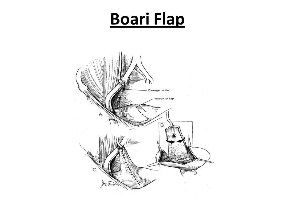 Boari Flap