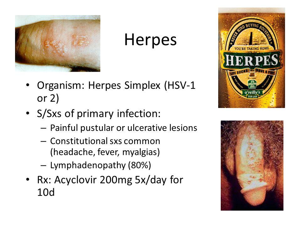 Herpes Organism: Herpes Simplex (HSV-1 or 2)