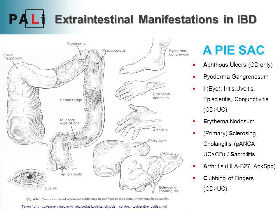 Extraintestinal Manifestations in IBD