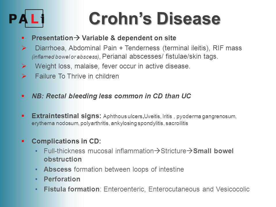 Crohn's Disease Presentation Variable & dependent on site