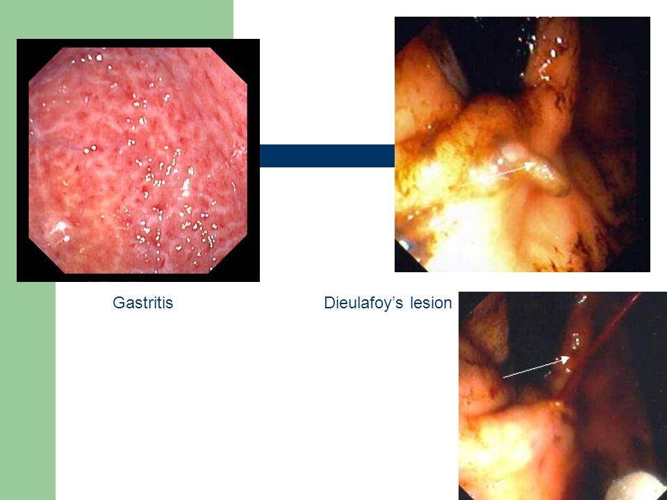 Gastritis Dieulafoy's lesion