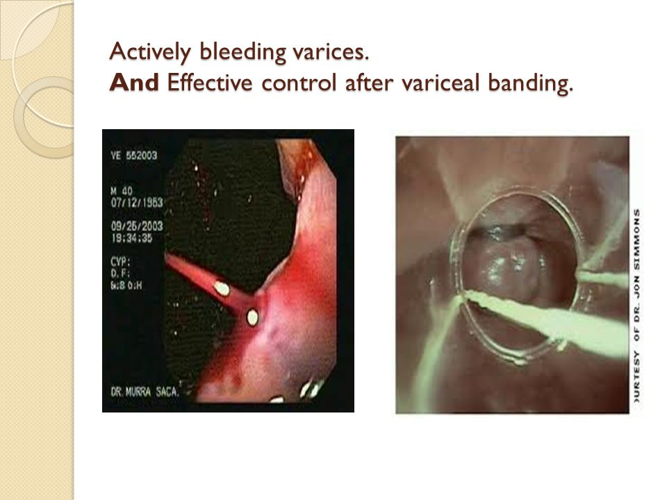 Actively bleeding varices. And Effective control after variceal banding.