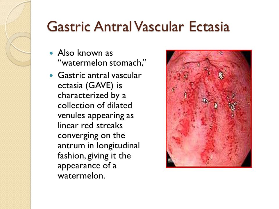 Gastric Antral Vascular Ectasia