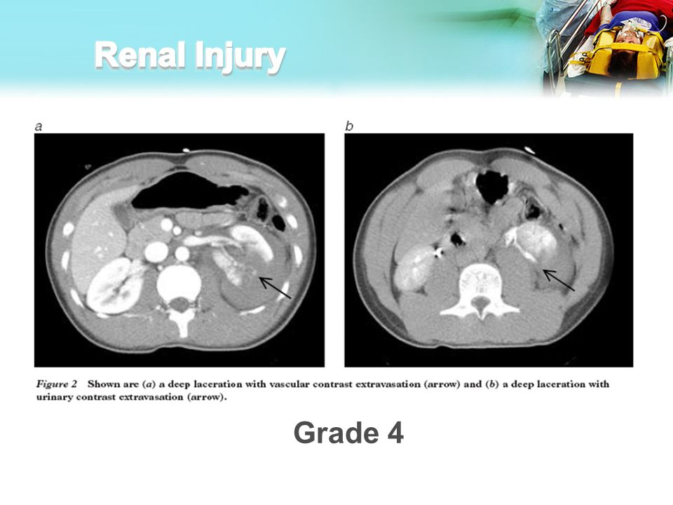 Renal Injury I think there may be too many examples. We can cut some of them out if the presentation is too long.