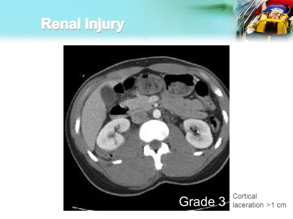 Renal Injury Cortical laceration >1 cm Grade 3