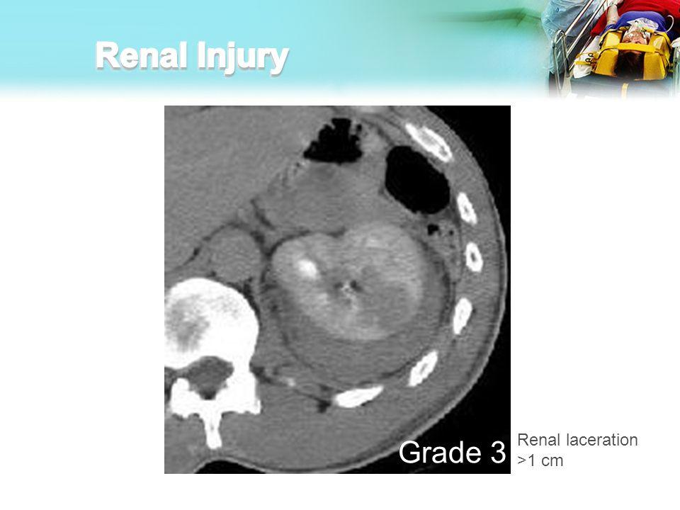 Renal Injury Renal laceration >1 cm Grade 3