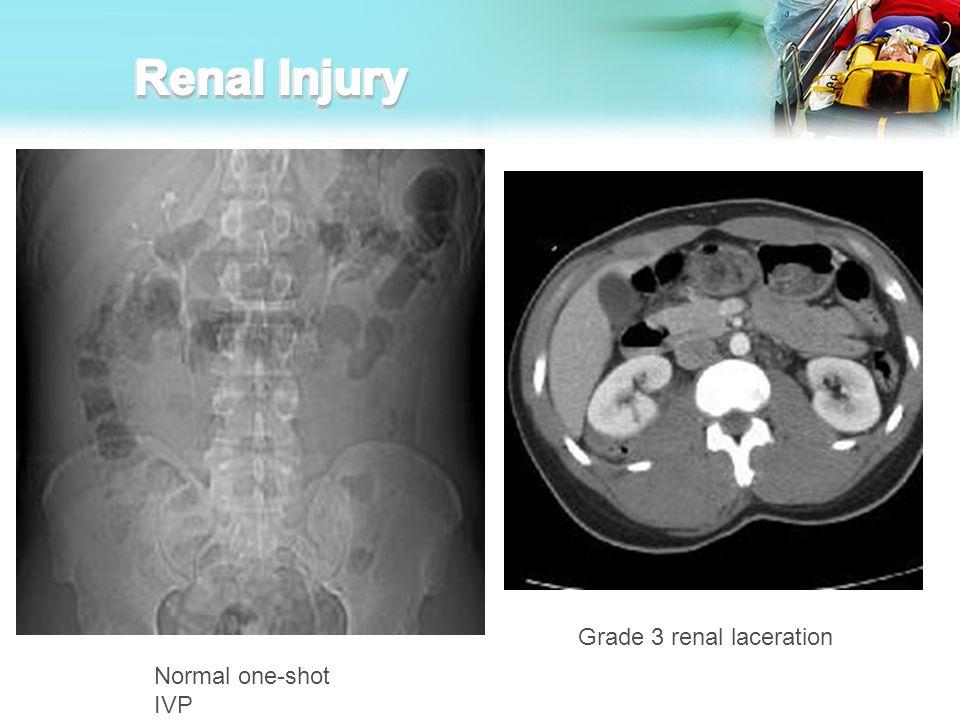 Renal Injury Grade 3 renal laceration Normal one-shot IVP