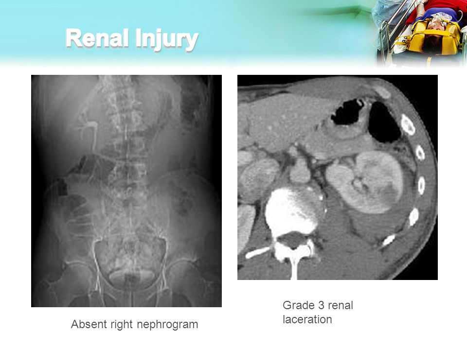 Renal Injury Grade 3 renal laceration Absent right nephrogram