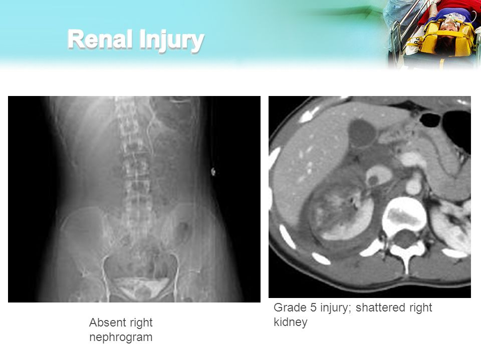 Renal Injury Grade 5 injury; shattered right kidney
