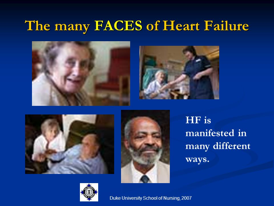 The many FACES of Heart Failure