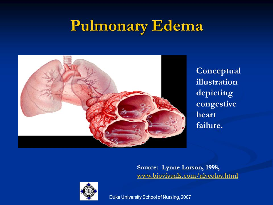 relationship between lung edema and leg in heart failure