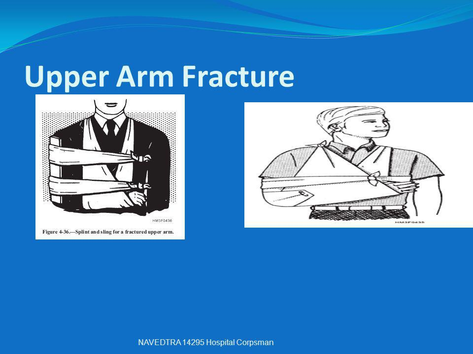 Upper Arm Fracture NAVEDTRA 14295 Hospital Corpsman