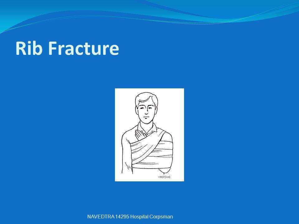 Rib Fracture NAVEDTRA 14295 Hospital Corpsman
