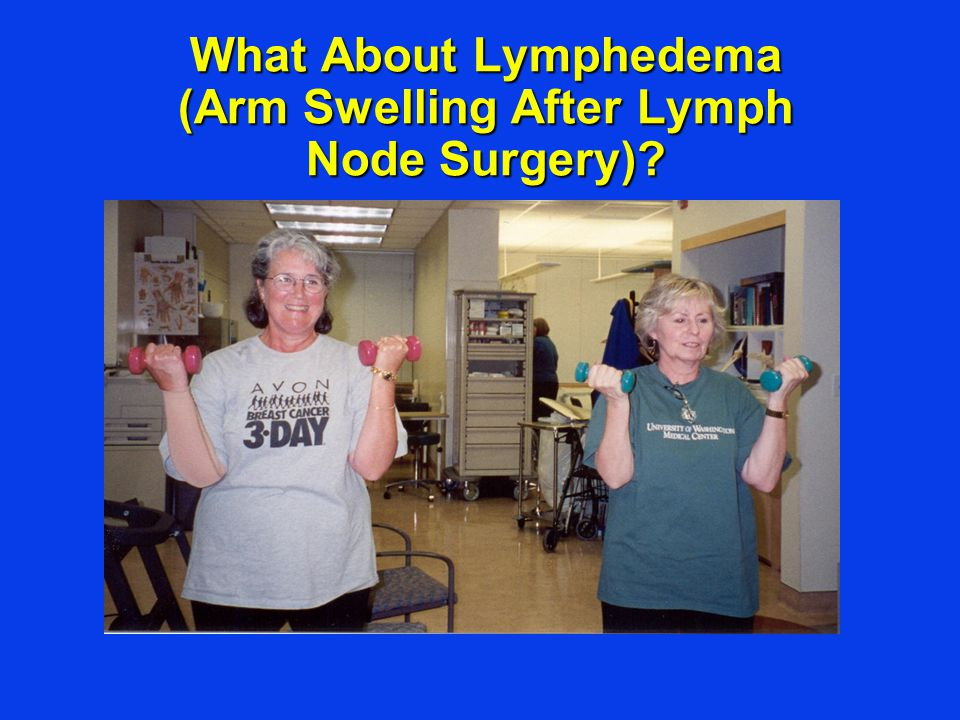 What About Lymphedema (Arm Swelling After Lymph Node Surgery)