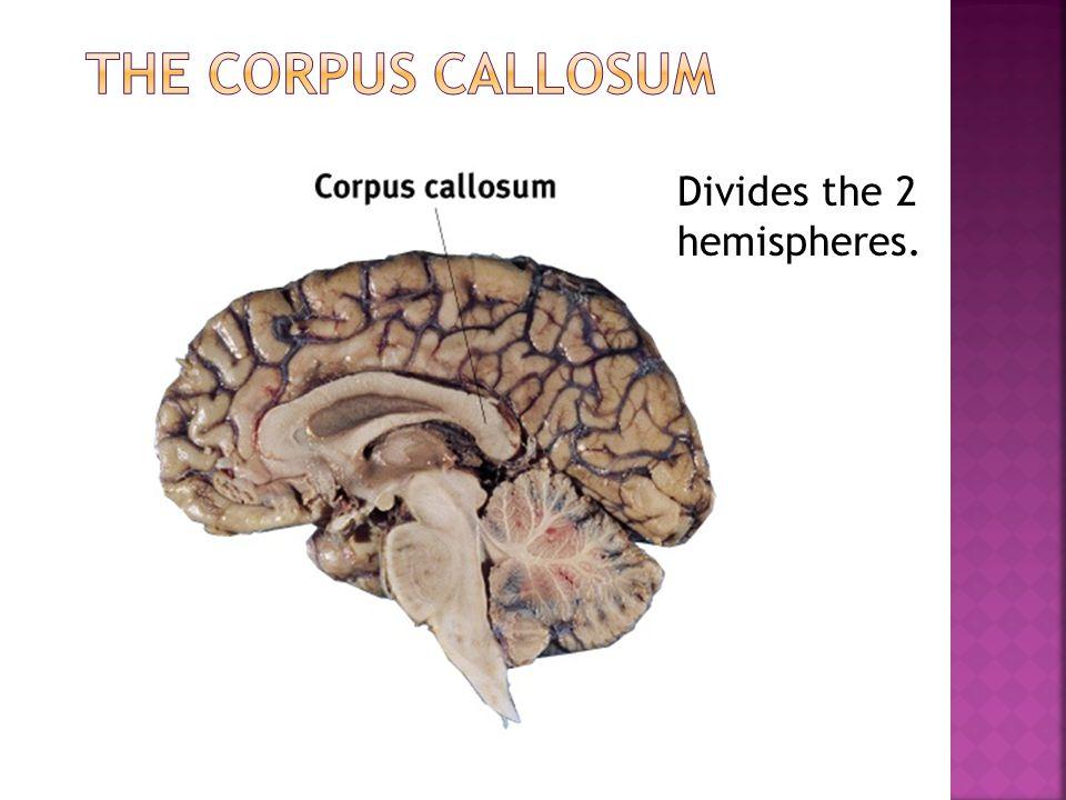 The Corpus Callosum Divides the 2 hemispheres.