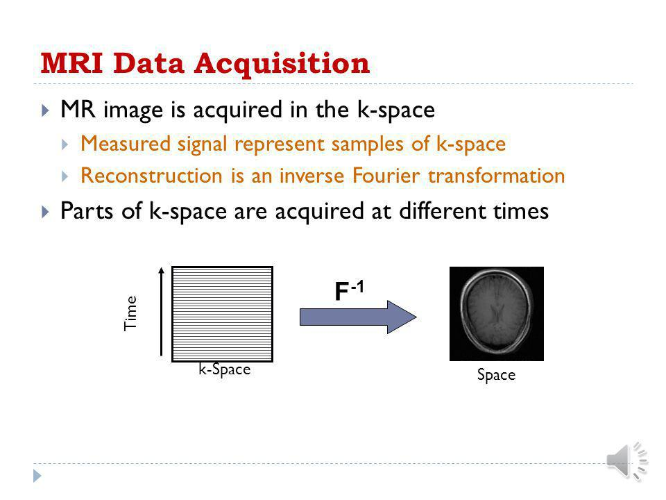 MRI Data Acquisition MR image is acquired in the k-space