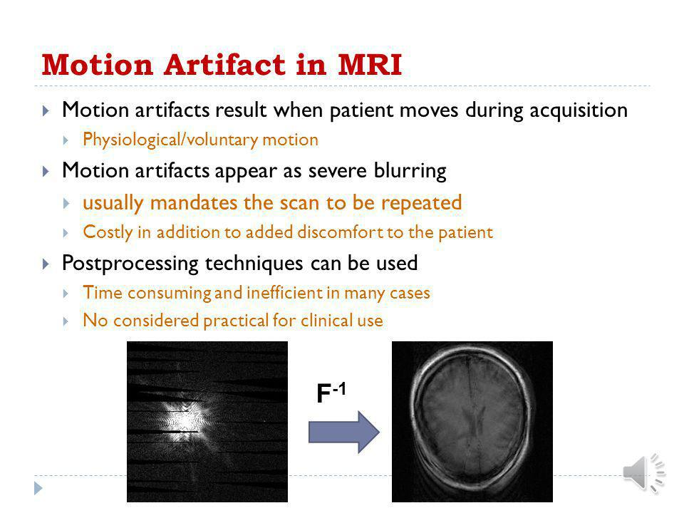 Motion Artifact in MRI F-1