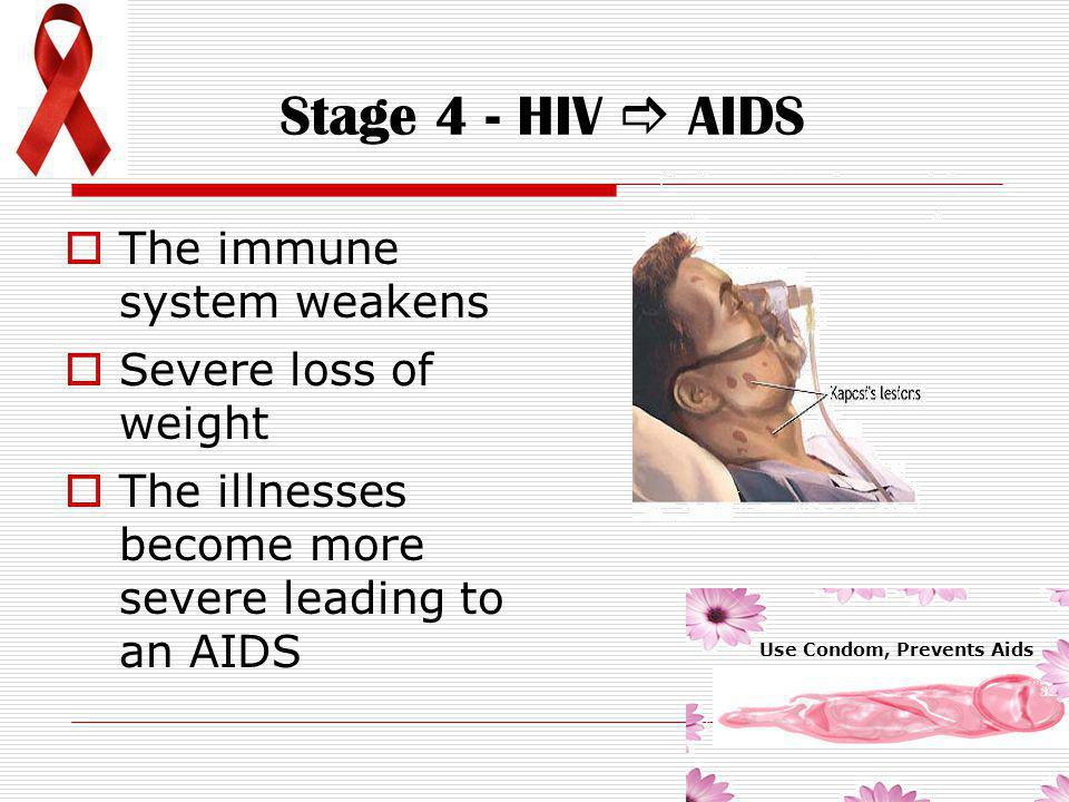 Stage 4 - HIV  AIDS The immune system weakens Severe loss of weight