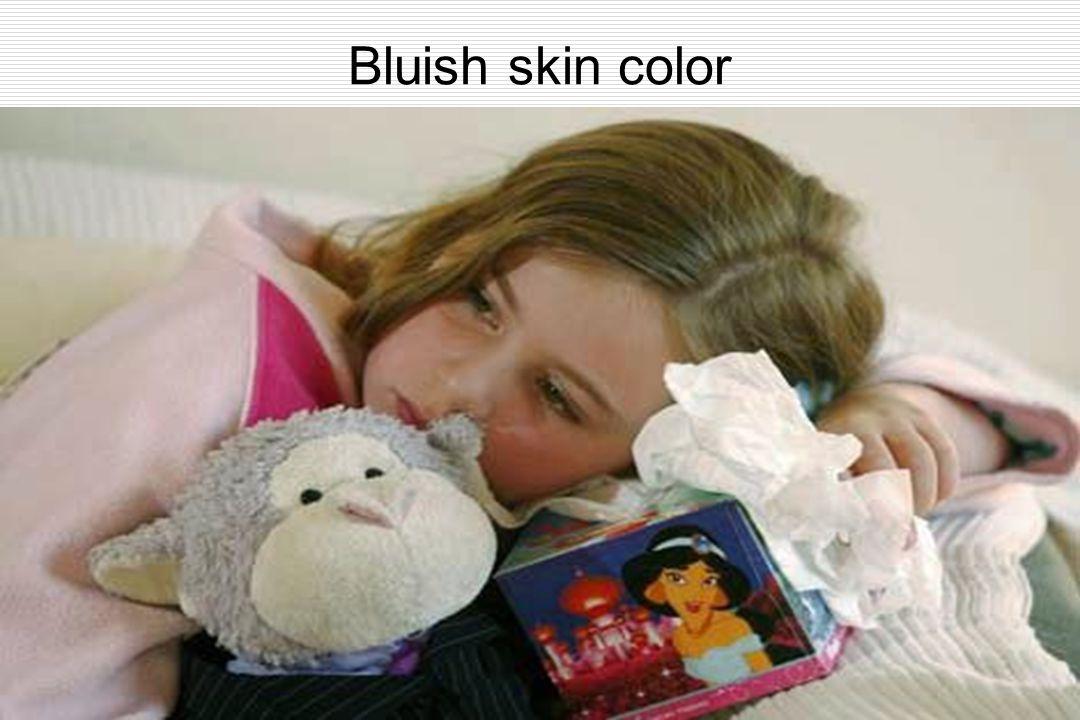 Bluish skin color