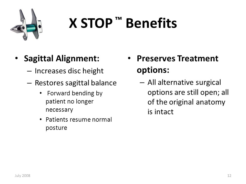X STOP ™ Benefits Anatomical structures: Kinematics: