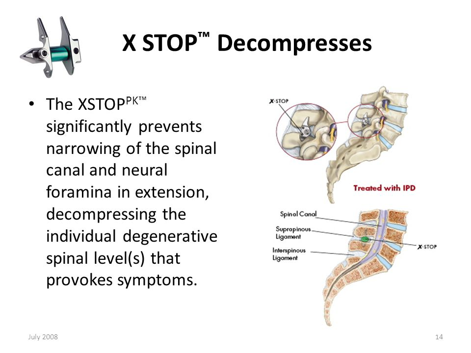 X STOP™ Decompresses The dimensions of the spinal canal and lateral neural foramen change significantly with posture.