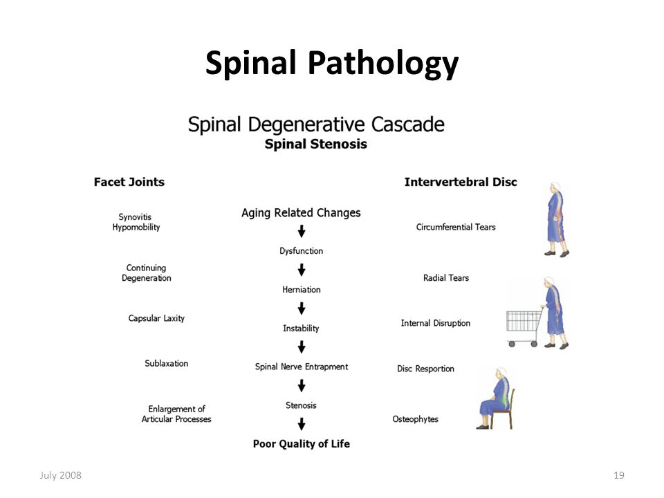 Studies: High failure rate of the interspinous distraction device (X-Stop) for the treatment of lumbar spinal stenosis caused by degenerative spondylolisthesis. Verhoof, OJ, Bron , LJ, Wapstra, FH, van Royen BJ.Eur Spine J (2008) 17:188–192