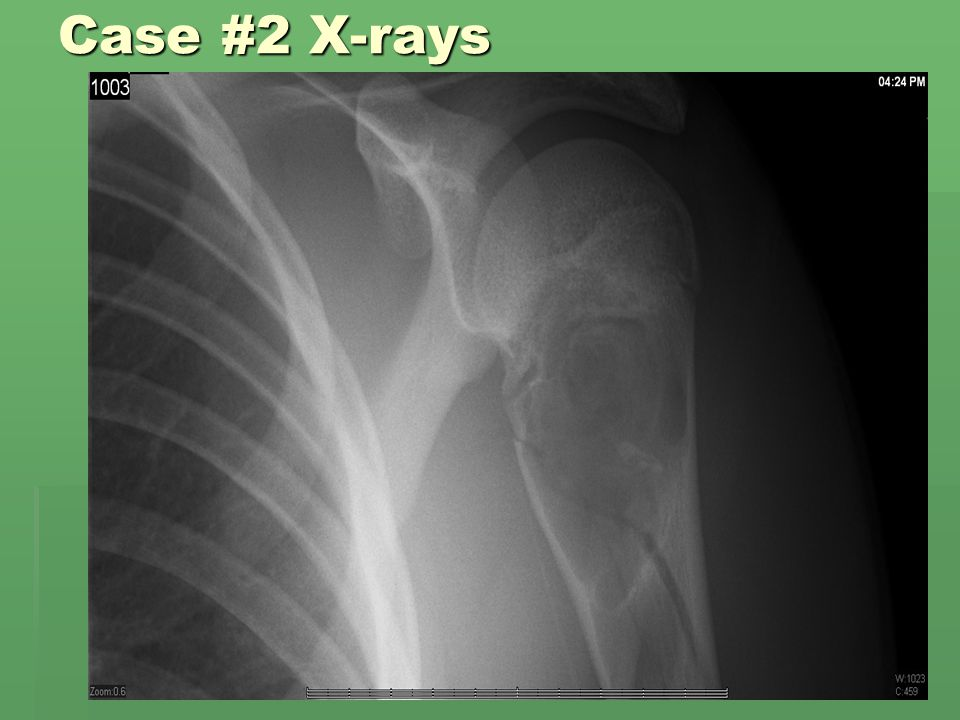 Case #2 X-rays