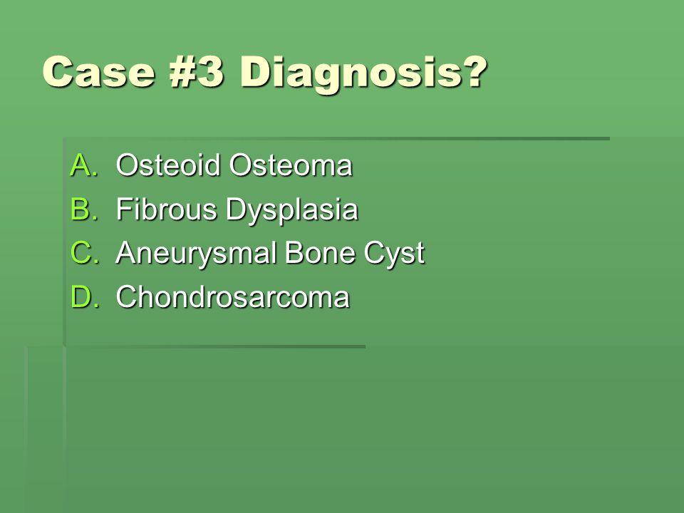 Case #3 Diagnosis Osteoid Osteoma Fibrous Dysplasia