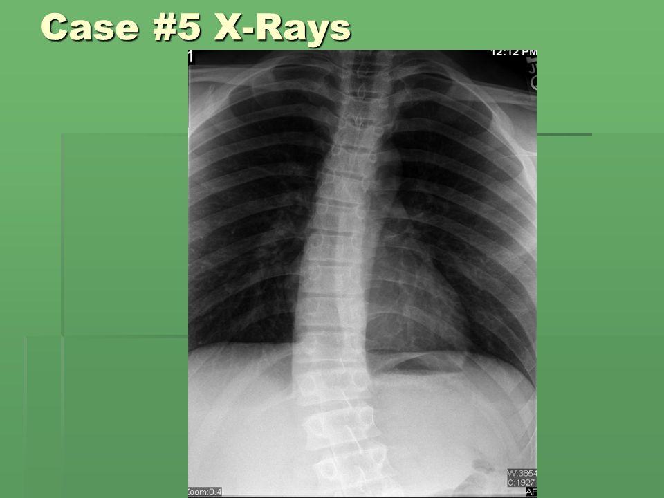 Case #5 X-Rays