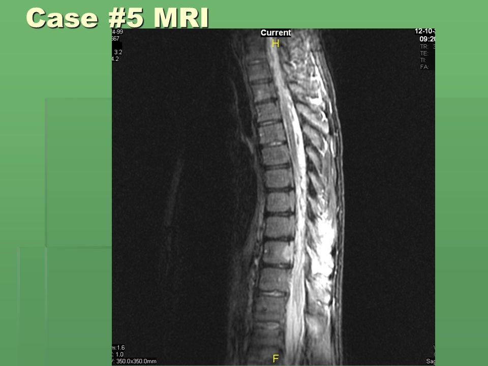 Case #5 MRI