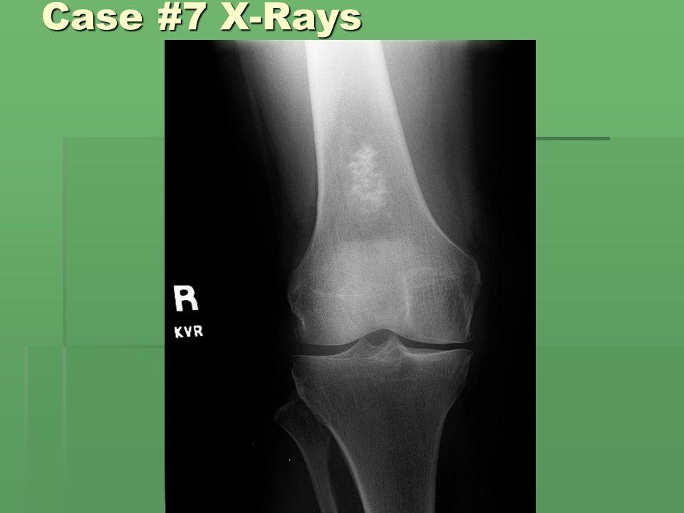 Case #7 X-Rays