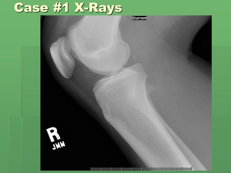 Case #1 X-Rays