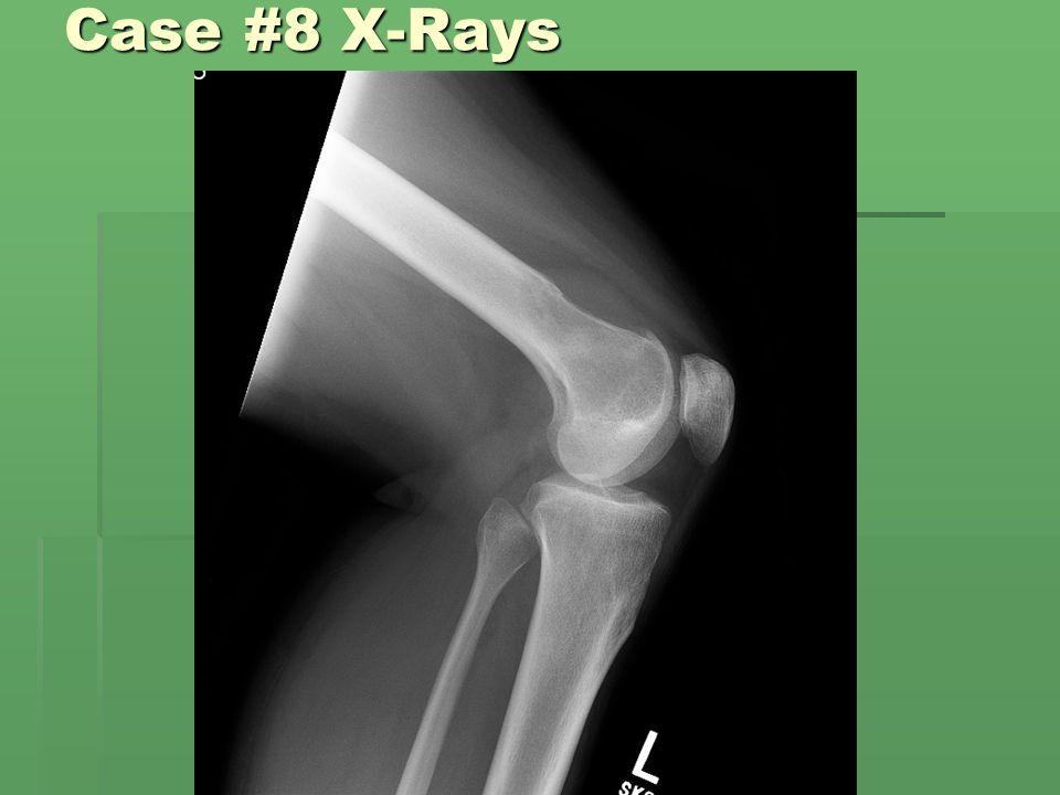 Case #8 X-Rays