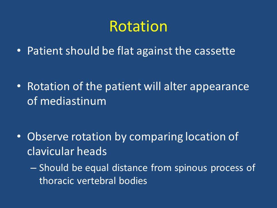 Rotation Patient should be flat against the cassette