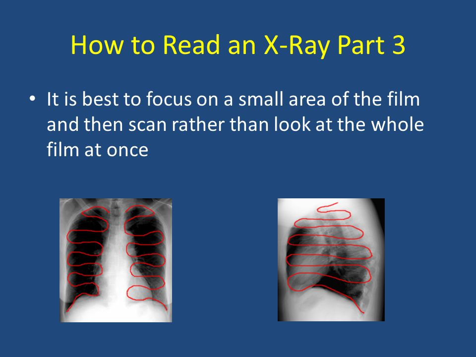 How to Read an X-Ray Part 3