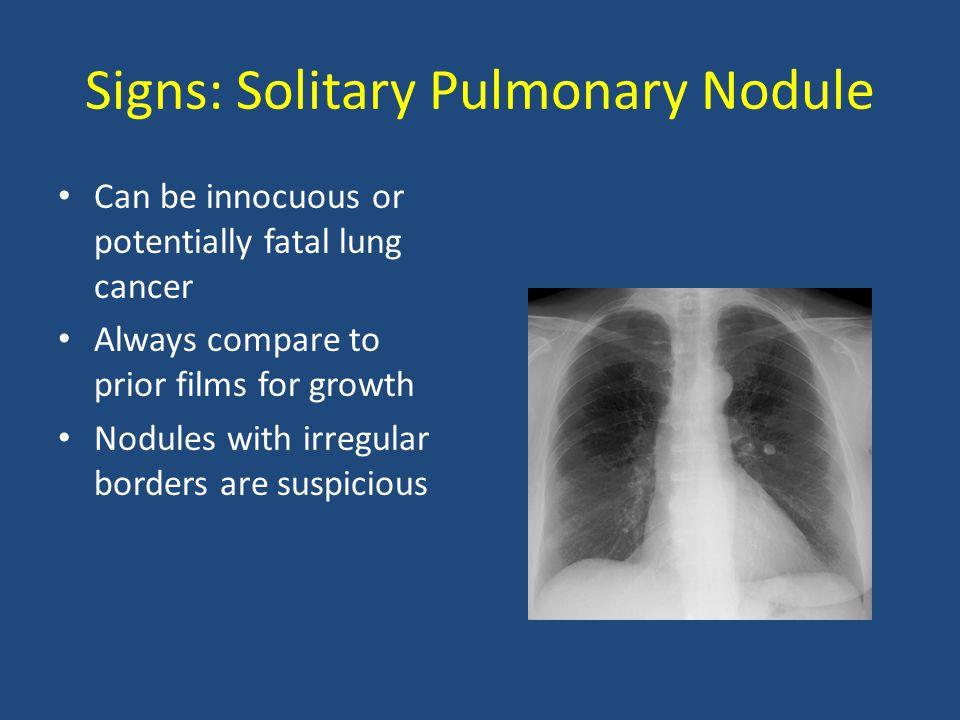 Signs: Solitary Pulmonary Nodule