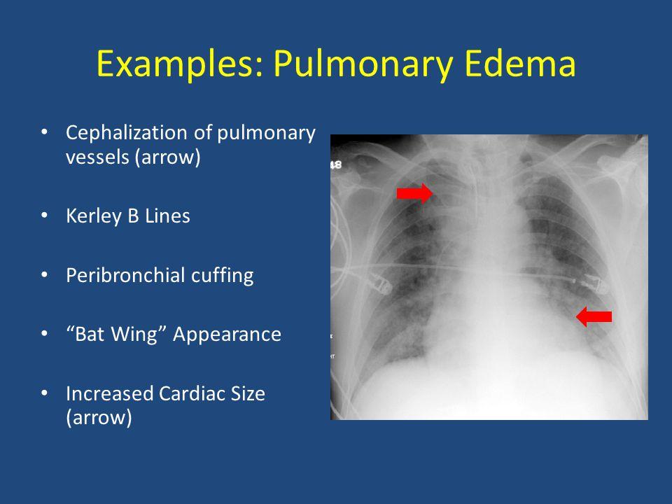 Examples: Pulmonary Edema