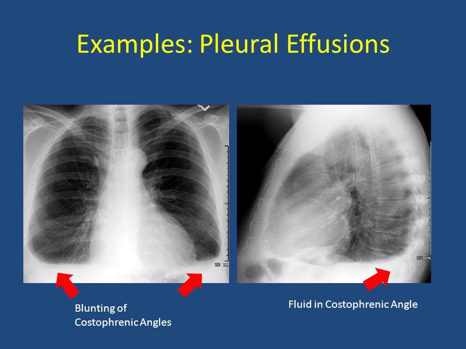 Examples: Pleural Effusions
