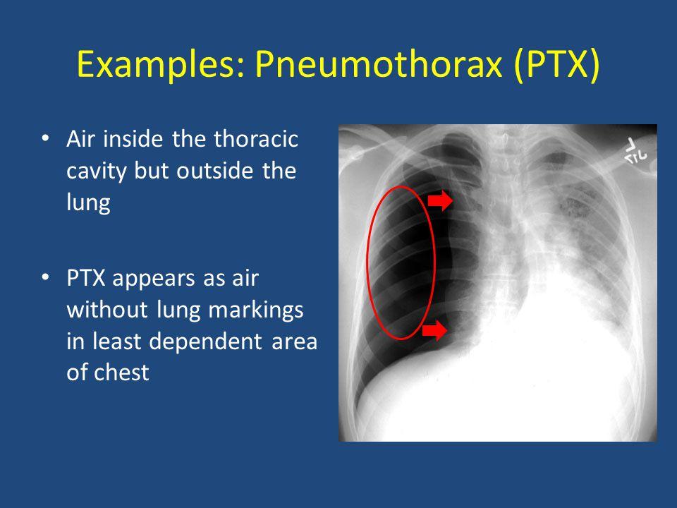 Examples: Pneumothorax (PTX)