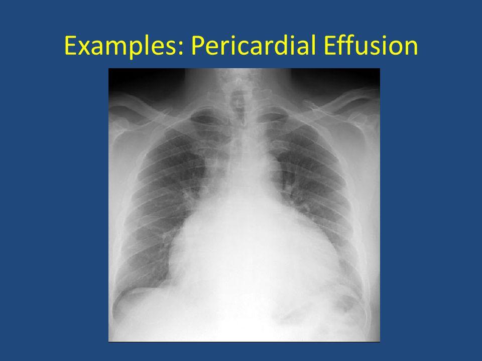 Examples: Pericardial Effusion