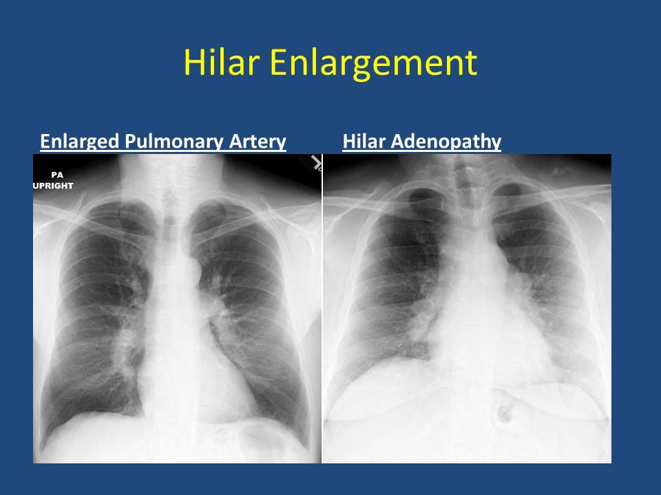Hilar Enlargement Enlarged Pulmonary Artery Hilar Adenopathy