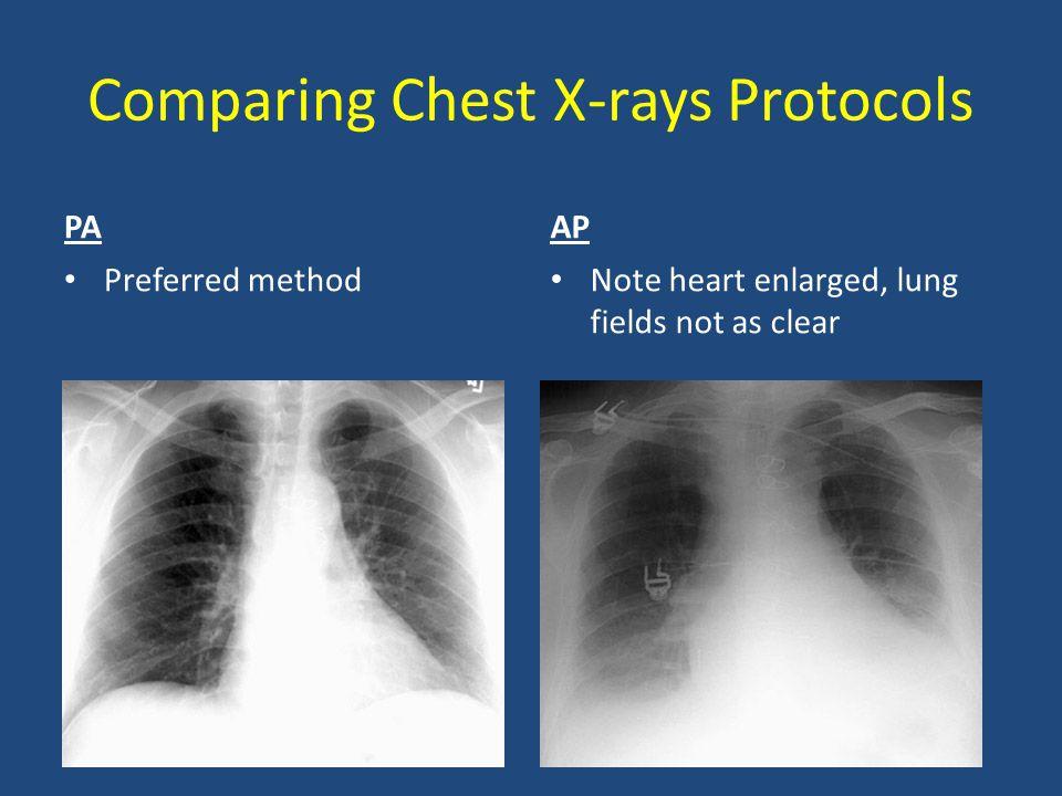 Comparing Chest X-rays Protocols