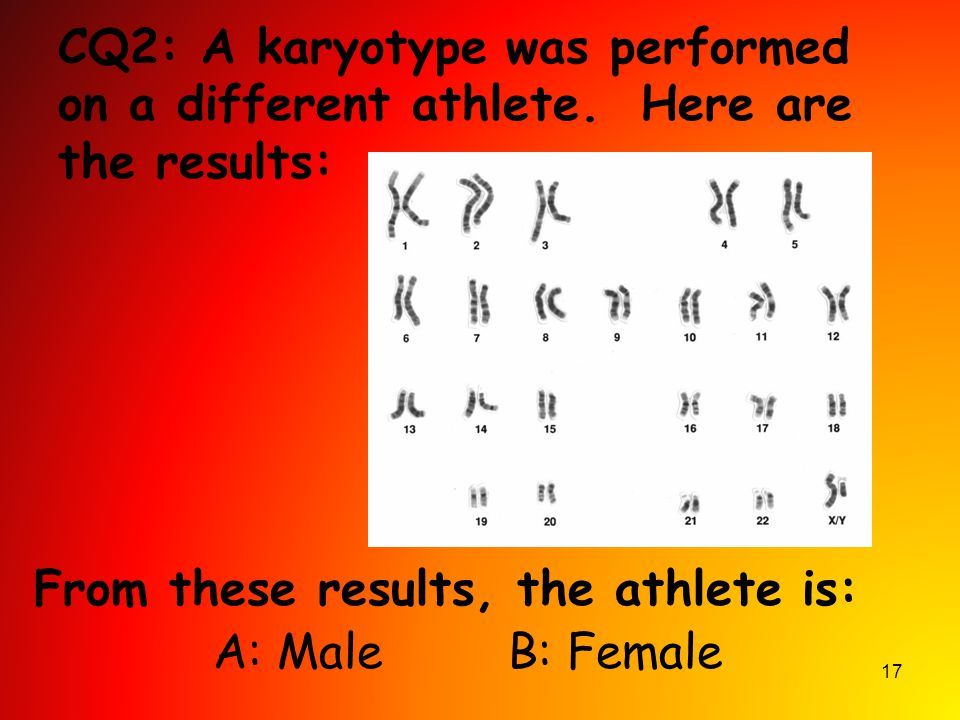 CQ2: A karyotype was performed on a different athlete
