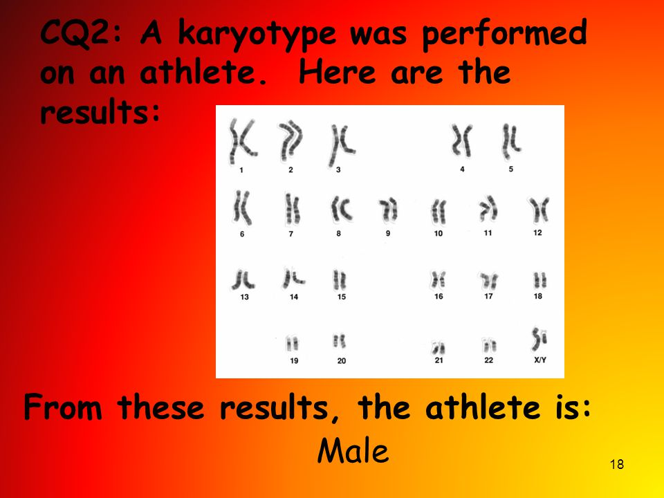 CQ2: A karyotype was performed on an athlete. Here are the results:
